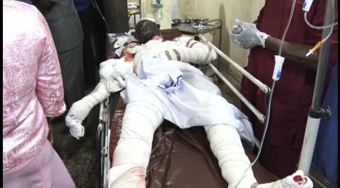 Fuel Tanker Explosion Patient Dies At FMC Abeokuta
