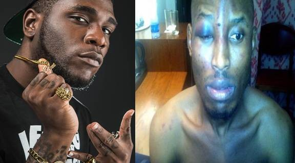 Burna Boy granted 100k bail over involvement in Mr 2kay's incident