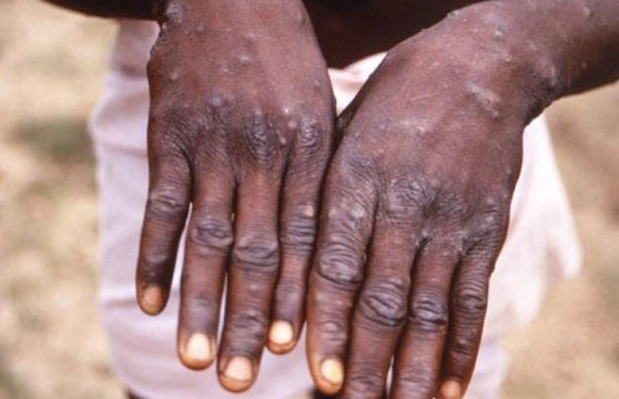 Monkey Pox recorded in Ekiti