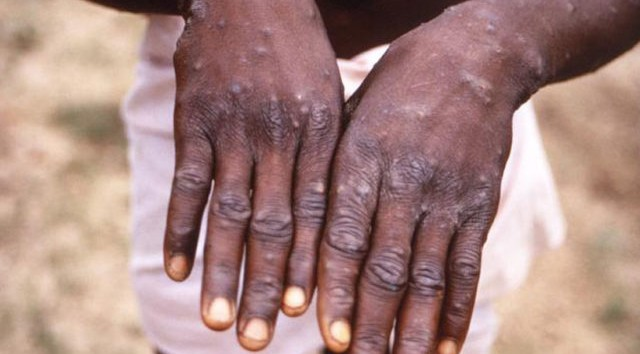 Lagos confirms two cases of Monkey Pox