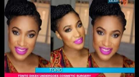 The Buzz: Tonto Dike undergoes cosmetic surgery